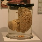 The 3 Weirdest Brain Disorders?